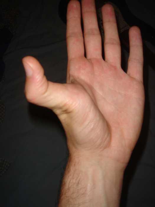 Lesión en la muñeca: Tendón del dedo gordo - Foro Muñon
